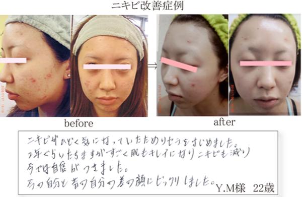 ≪改善例4≫