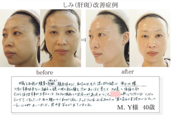 ≪改善例9≫